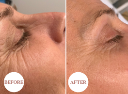 Dermapen 4 Skin Rejuvenation offer Elite Skin